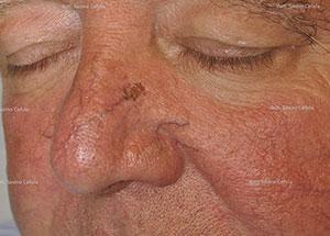 Botulino e acido ialuronico, insieme per migliori risultati antietà.